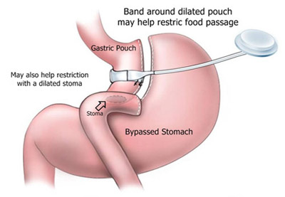 Lap Band over Gastric Bypass