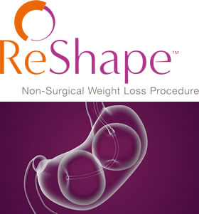 ReShape Non-Surgical Weight Loss Procedure